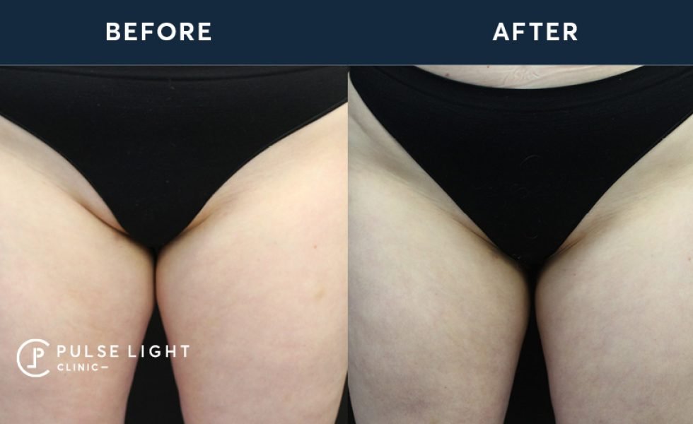 After CoolSculpting Inner Thighs