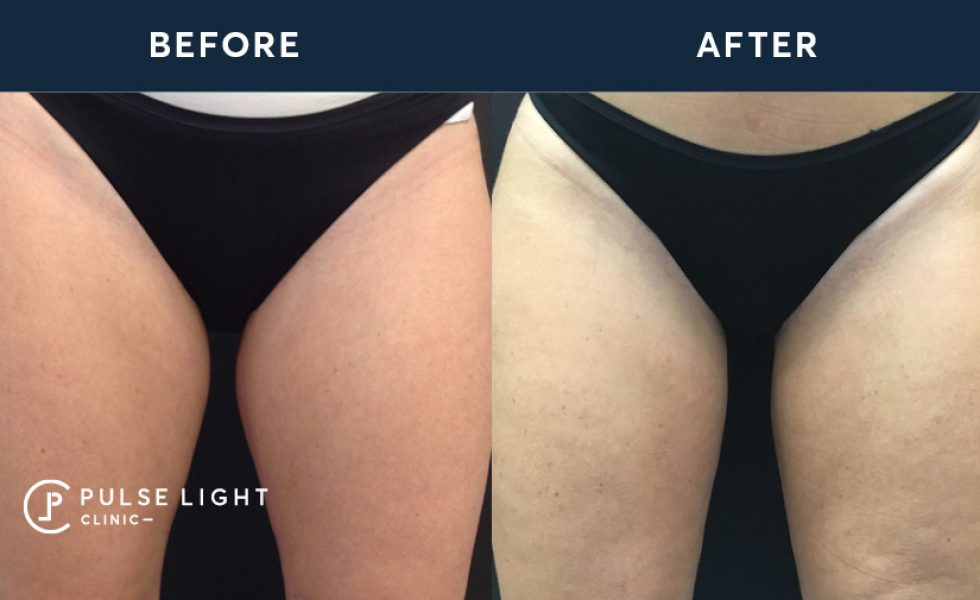 Pulse Light Clinic Fat Freezing Inner Thighs