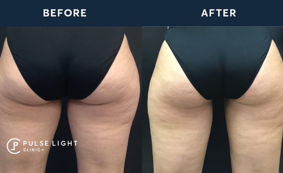 After 1 CoolSculpting treatment, with 2 mini applicators on inner thighs