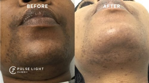Ingrown hair chin before and after laser hair removal