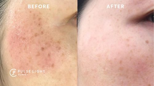 Facial Pigmentation Before and After