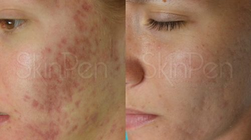 DermaPen 微针應用於面頰位置