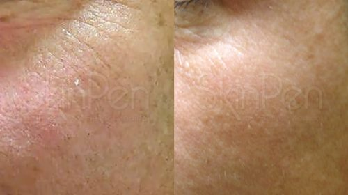 Before and after skin pen treatment around the eyes