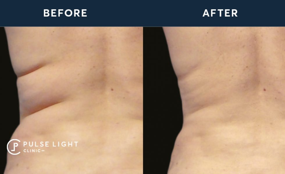 CoolSculpting Before and after on women's back fat