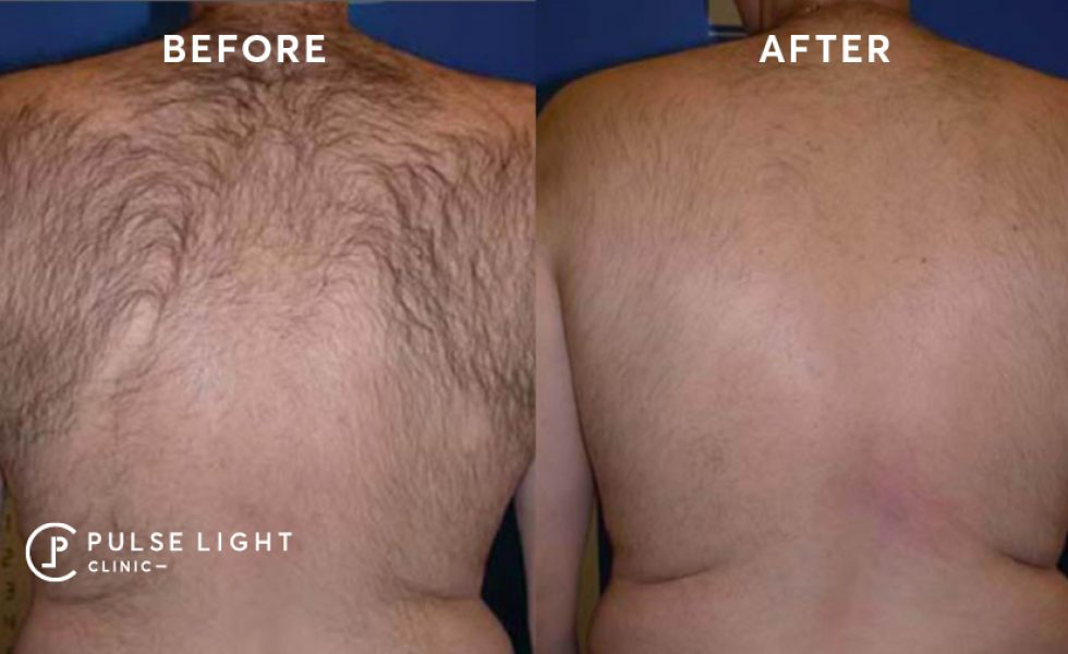 Before and after laser hair removal on a mans back