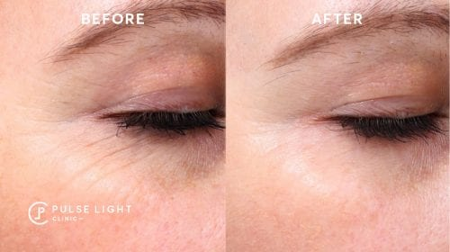 Before and after of wrinkles near a women's eyes