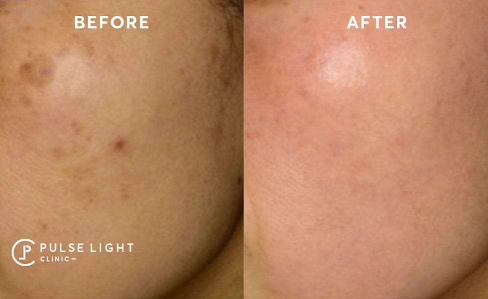 Lady's cheek after Acne Scar Removal traetment