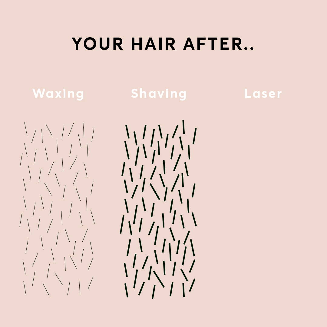 Results diagram after waxing, shaving and laser hair removal
