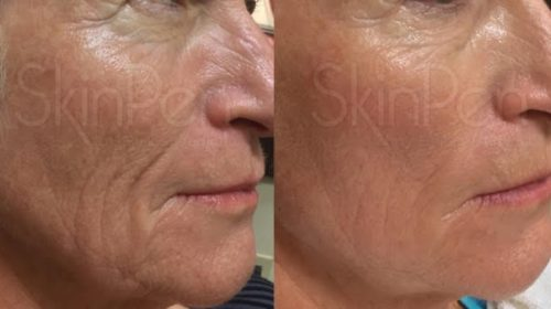 Older lady showing results on facial lines after skinpen treatment