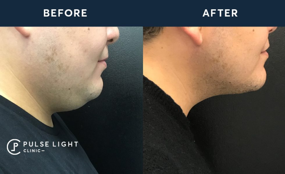 Before and after of a man's double chin using CoolSculpting machine at Pulse Light Clinic