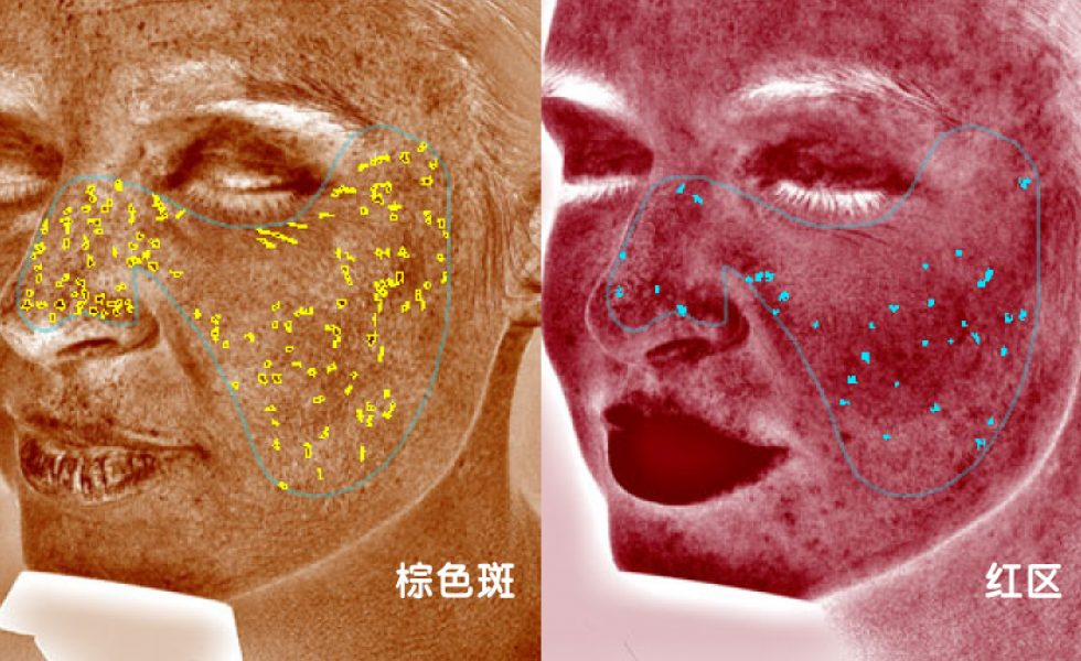 Before and after of ladies face showing illustrations of areas of skin issues