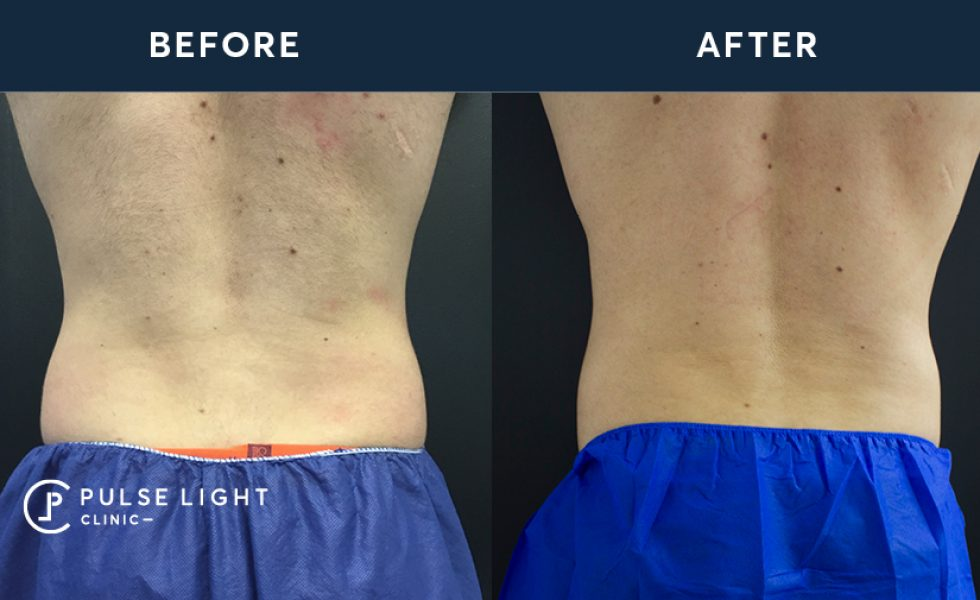 Before and after of a man's flanks after CoolSculpting