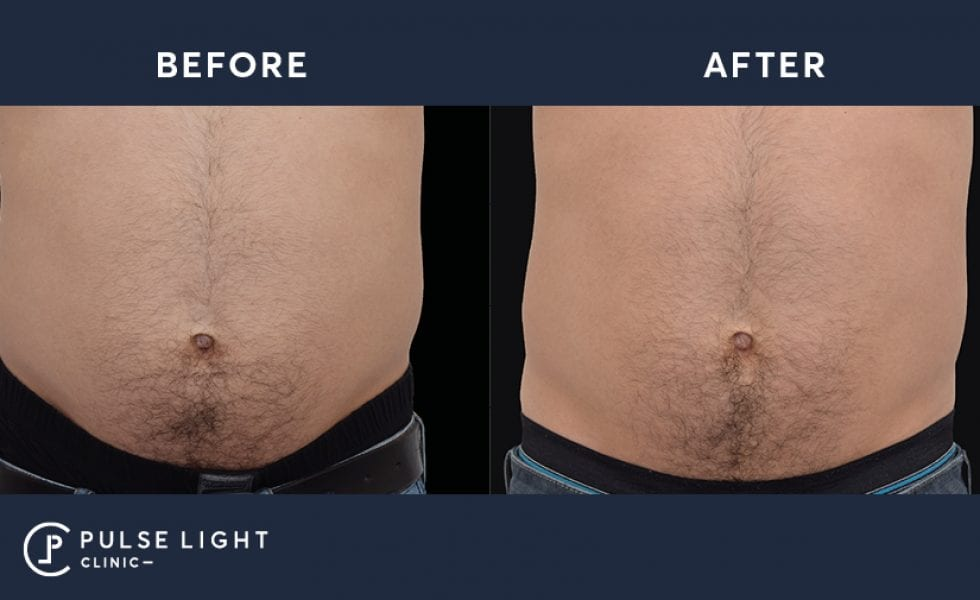 Before and after taken of a mans abdomen using Emsculpt