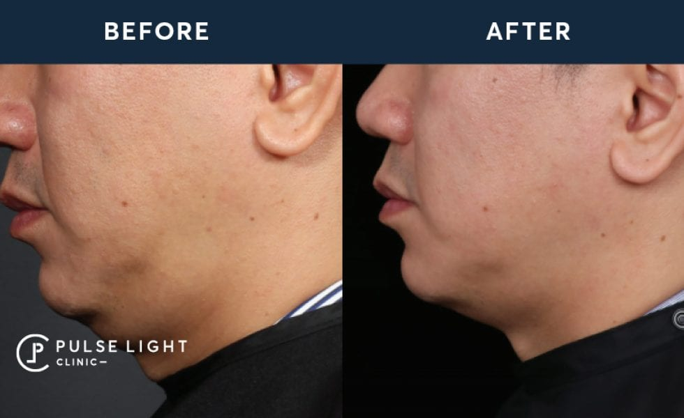 Before and after treatment of a man's face after Profound treatment at Pulse Light Clinic