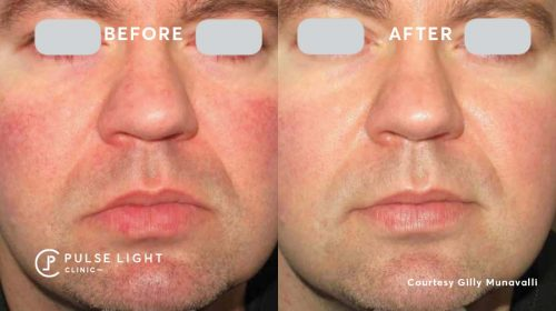 A man's close up before and after treatment of Rosacea