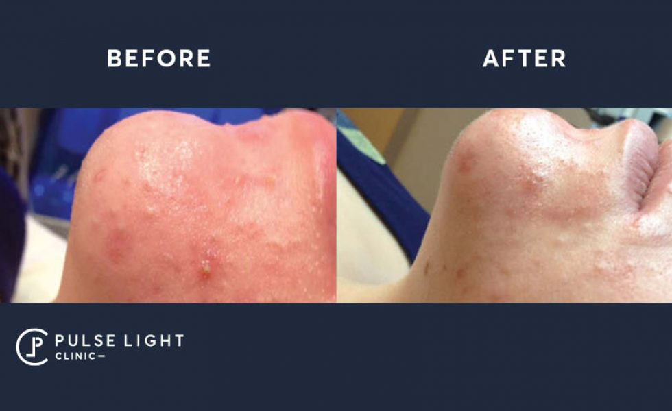 Pigmented face before and after using the hydra facial