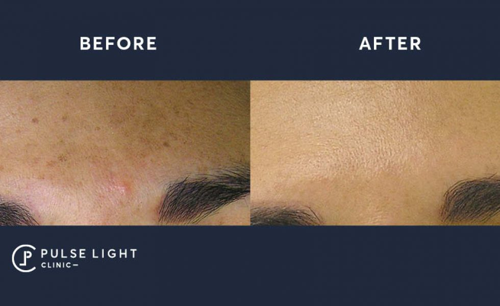 Before and after a hydra facial on olive skin tone