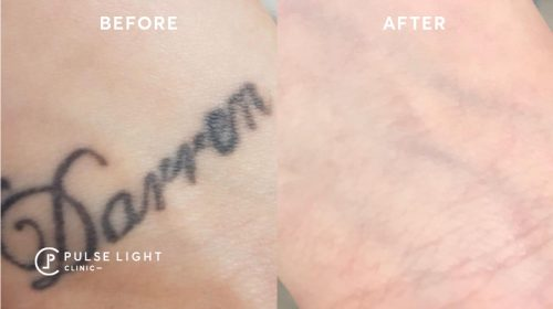 Laser tattoo removal done on the wrists
