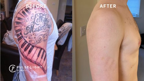 A before and after tattoo removal of a man's full arm at Pulse Light Clinic