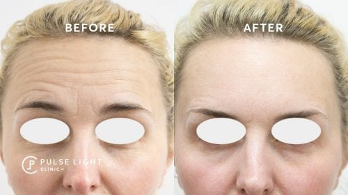 For-head botox