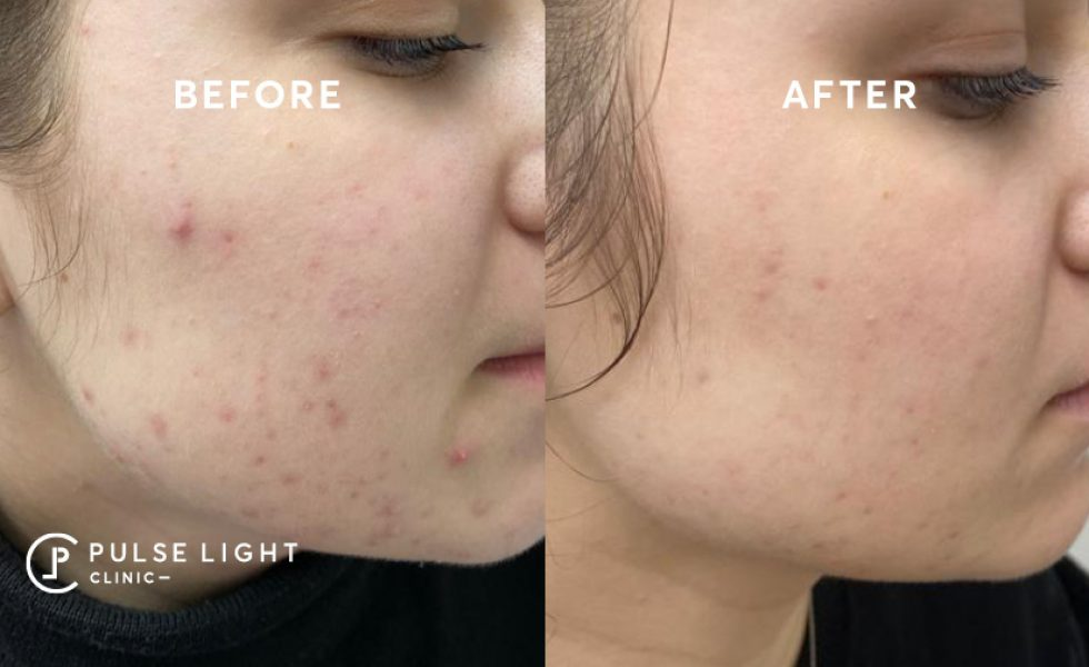 LED Phototherapy before and after