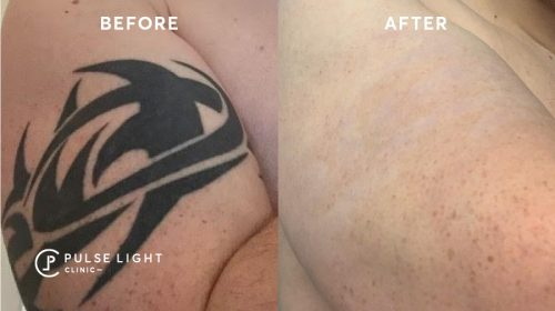Tribal tattoo removed at Pulse Light Clinic