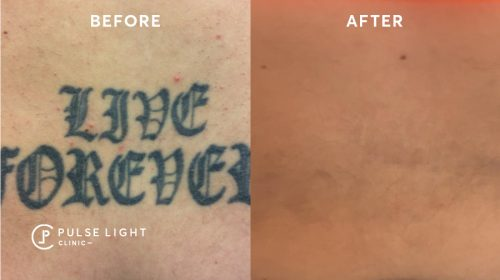 Before and after tattoo removal on a man's arm
