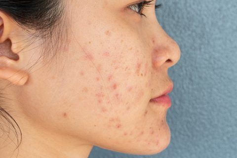 lady with acne on her face