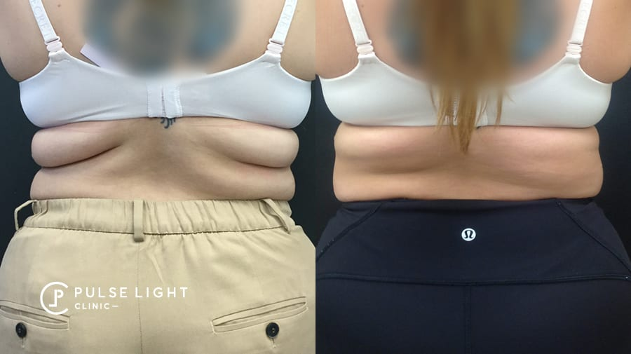 Before and after fat on lady's back