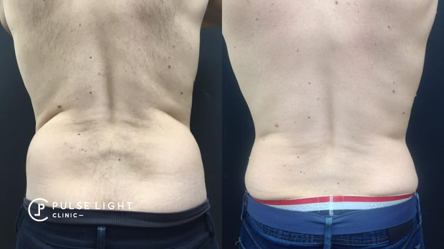 Before and after on man's back after CoolSculpting