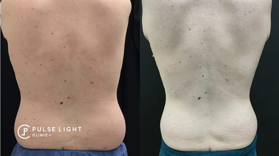 A before and after of a man's back with reduction of fat on his love handles