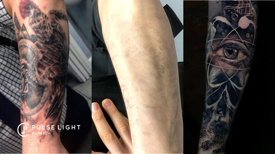 Cover up tattoo at Pulse Light Clinic