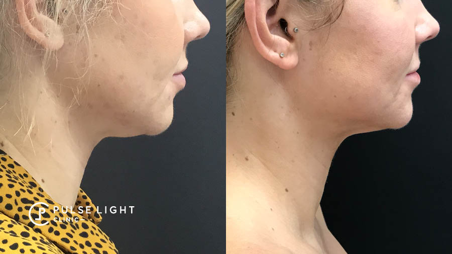 Female Chin Fat Freezing Before and After Results
