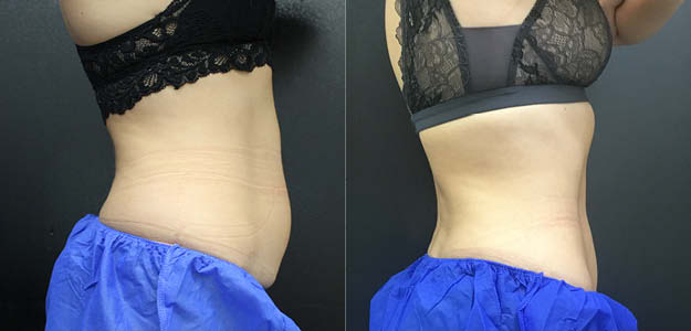 CoolSculpting Abdomen Before and After