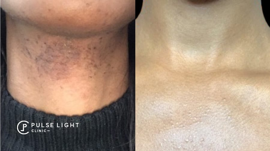 A lady's neck before and after showing reduction ingrown hairs and pigmentation