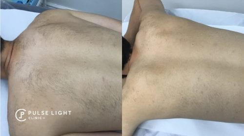 A man's back before and after laser hair removal