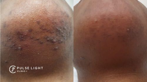 Chin of dark skin lady showing the results of reduction of ingrown hairs and pigmentation after laser hair removal