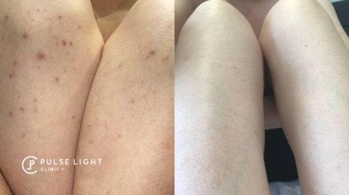 A lady's legs before and after showing the reduction of ingrown hairs