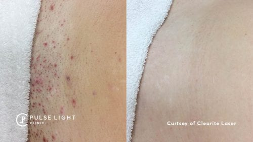 A before and after of a while lady's bikini line area with a huge reduction of ingrown hairs at Pulse Light Clinic