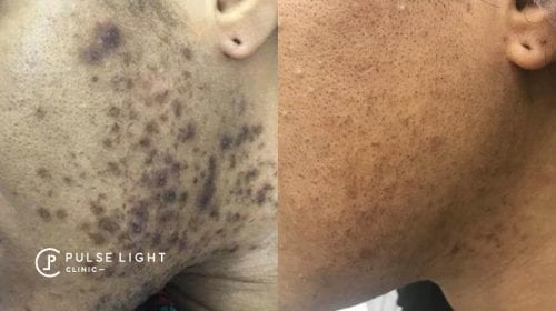 Side profile view of lady's face showing the difference after getting laser hair removal, ingrown hairs gone