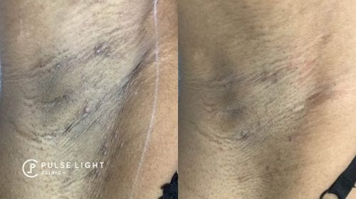 A lady's underarm showing less pigmentation after laser hair removal