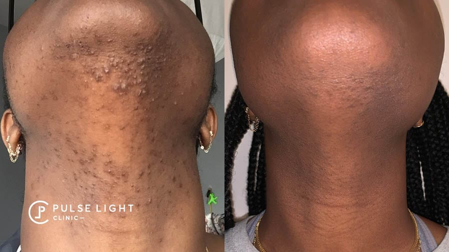Side profile view of lady's neck showing the difference after getting laser hair removal, ingrown hairs gone