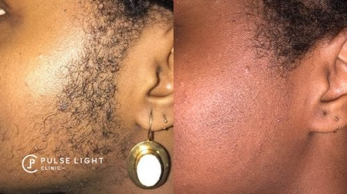 A before and after of dark skined lady's face showing a major reduction in facial hair