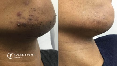 A side profile of a lady's chin showing the results of laser hair removal with reduction in uneven skin tone, pigmentation and ingrown hairs