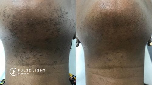 A lady's chin before and after showing the results of less hairs and pigmentation.