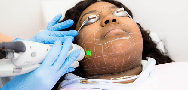 Lala Love Facial Hair Removal Treatment