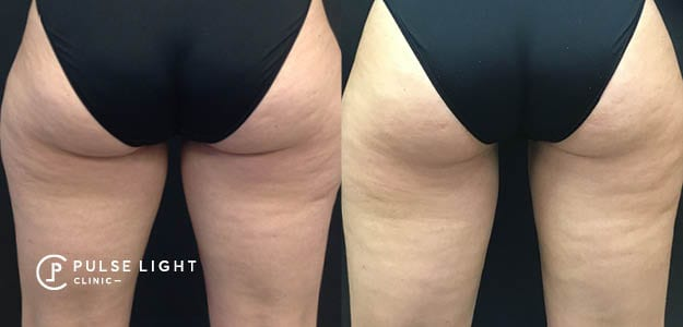 CoolSculpting Thigh Results Blog Post