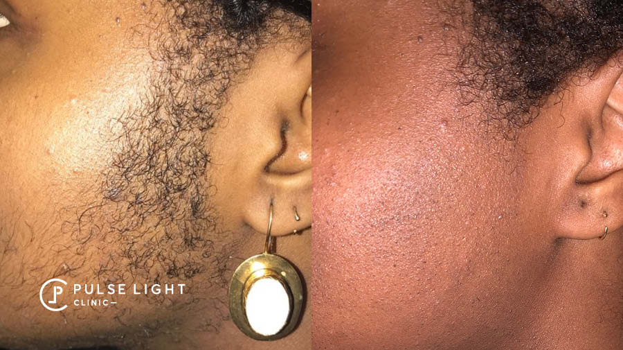 PCOS Laser Hair Removal Sideburns