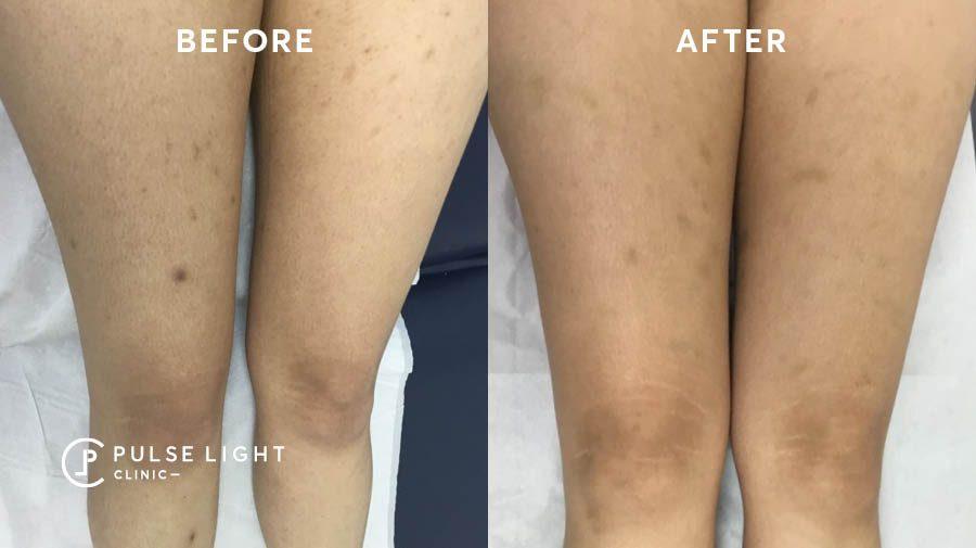 Laser hair removal ingrown hair legs