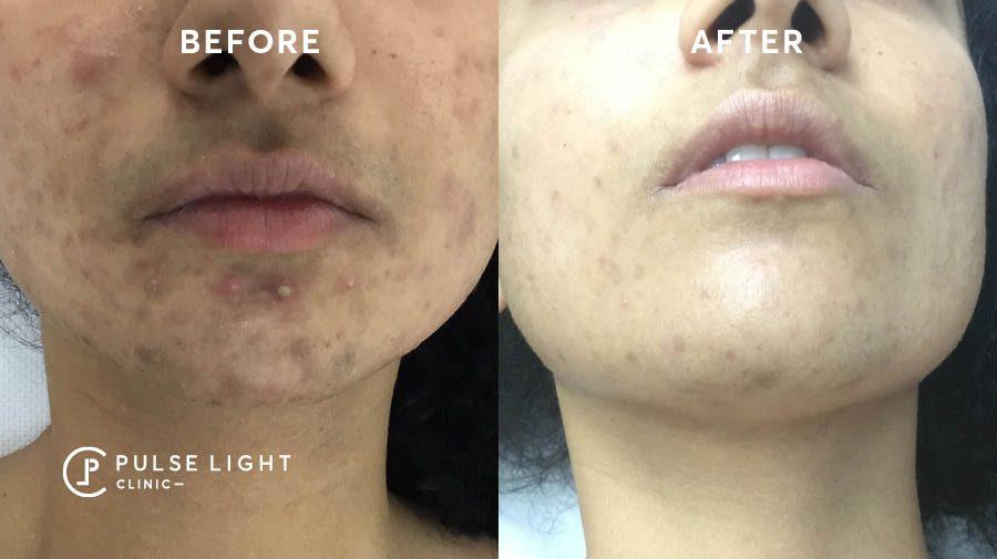 Ingrown hair removal face